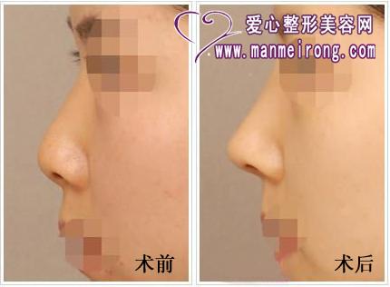 朝天鼻矫正效果对比图