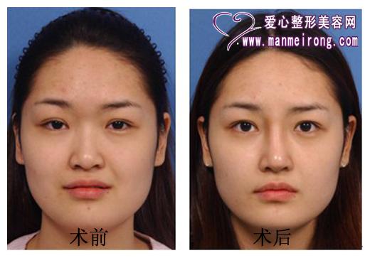 隆鼻术前后效果对比图