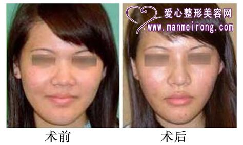 隆鼻术前后效果对比照片