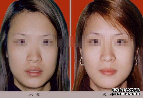 玻尿酸丰唇对比图