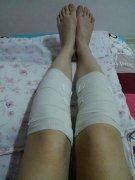 做了脂肪填充O型腿腿型好看多了,就等着淤血散了