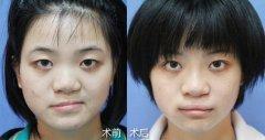 什么是唇裂修复手术